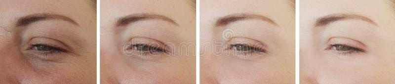 Diferença da cosmetologia da colagem dos enrugamentos dos olhos da mulher antes após o tratamento imagem de stock royalty free