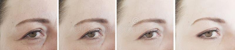 Diferença da cosmetologia da terapia da regeneração da colagem dos enrugamentos dos olhos da mulher antes após o tratamento imagens de stock royalty free