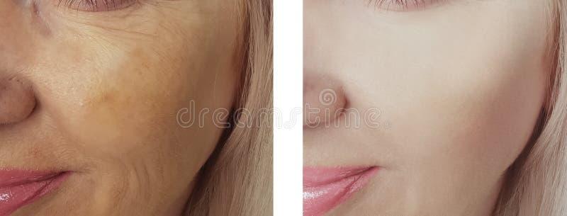 Diferença fêmea dos enrugamentos da beleza do olho antes após tratamentos antienvelhecimento da regeneração da dermatologia foto de stock