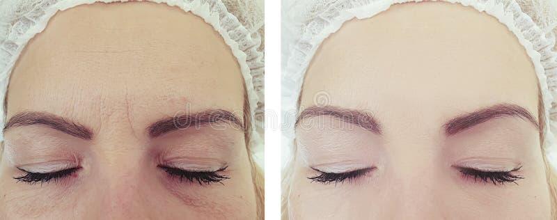 Diferença paciente da mulher dos enrugamentos da cara antes e depois do tratamento do rejuvenescimento imagens de stock royalty free