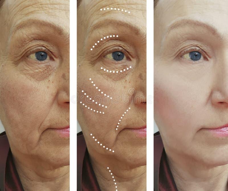 Diferencia de la diferencia del resultado de la corrección de las arrugas de la mujer mayor antes y después de la elevación de lo imagen de archivo libre de regalías