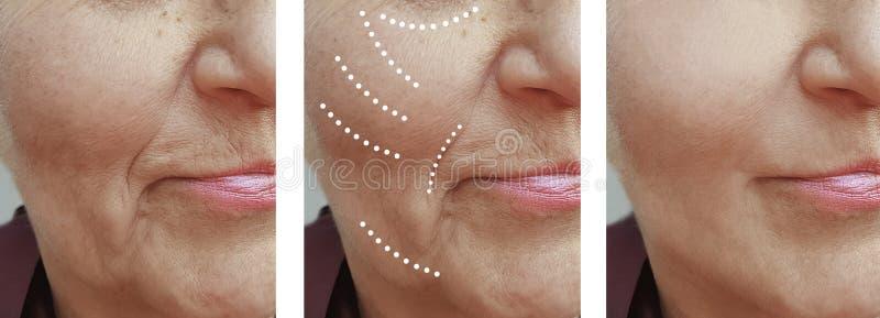 Diferencia del retiro de la diferencia del cirujano de la corrección de las arrugas de la mujer mayor antes y después de la eleva fotografía de archivo