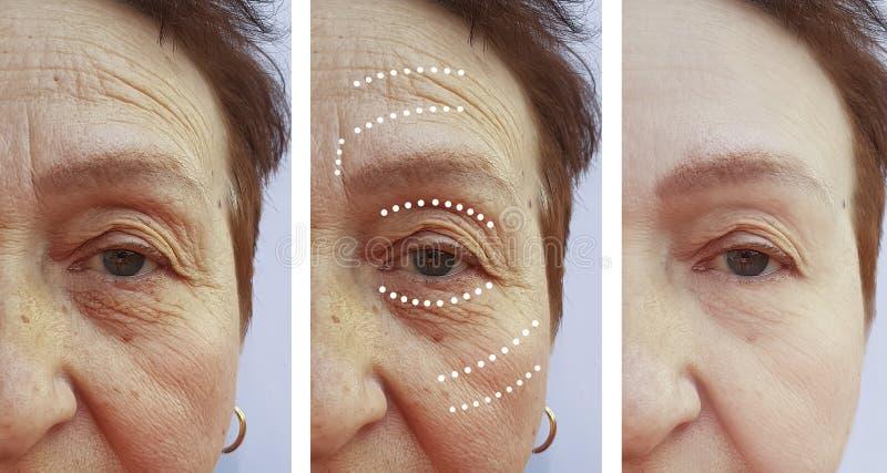 Diferencia del retiro de la diferencia del cirujano del resultado de la corrección de las arrugas de la mujer mayor antes y despu fotos de archivo
