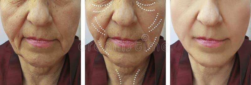 Diferencia del retiro de la diferencia del resultado de la corrección de las arrugas de la mujer mayor antes y después de la elev imagen de archivo libre de regalías