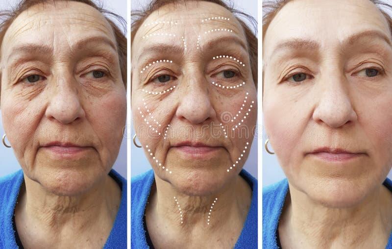 Diferencia del retiro del rejuvenecimiento de la corrección de las arrugas de la mujer mayor antes y después de tratamientos fotografía de archivo libre de regalías