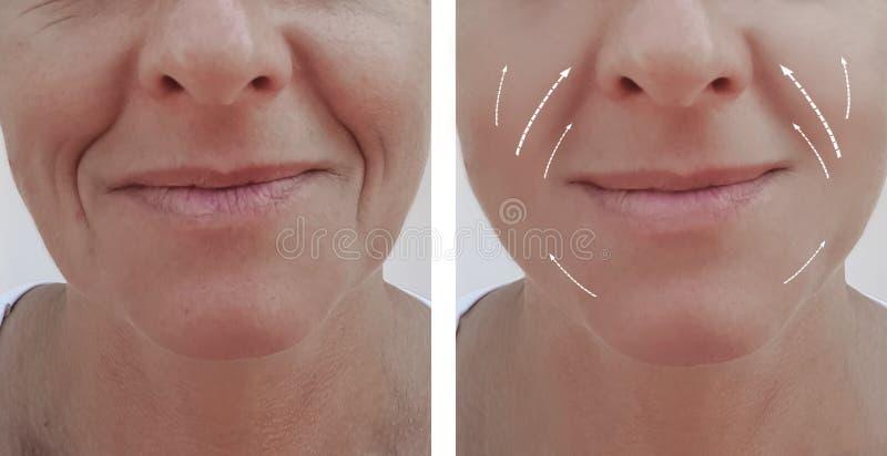 Diferencia paciente antes y después de procedimientos, flecha de las arrugas del retiro de la dermatología del contraste del llen fotos de archivo libres de regalías