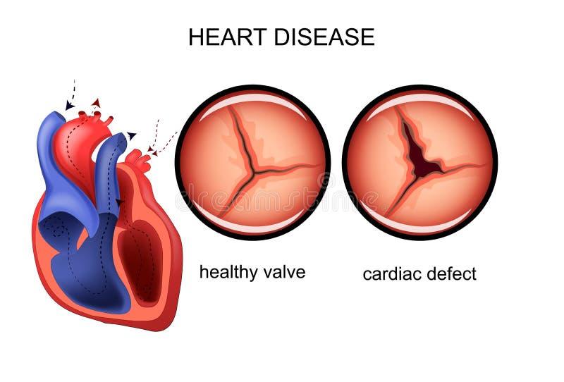 Difetto cardiaco cardiologia illustrazione di stock