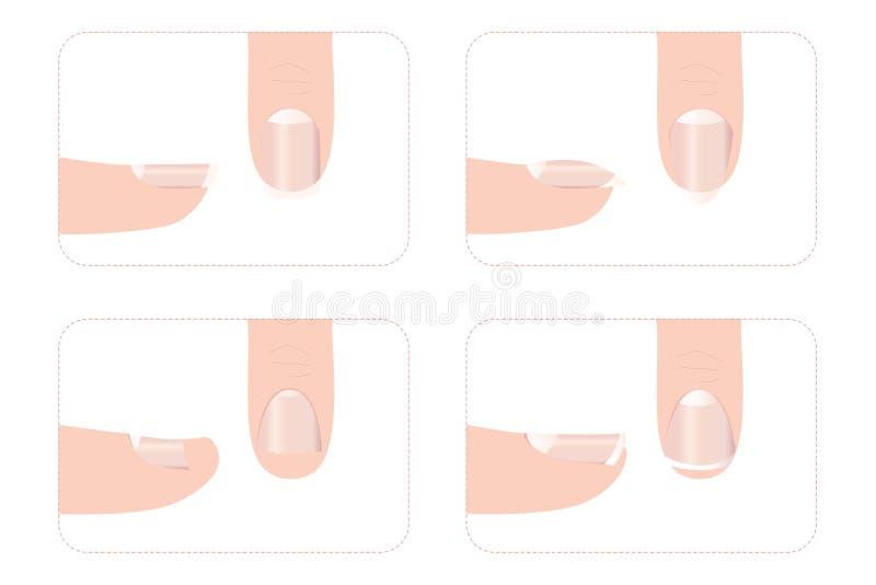Différentes formes d'ongle avec des doigts images stock