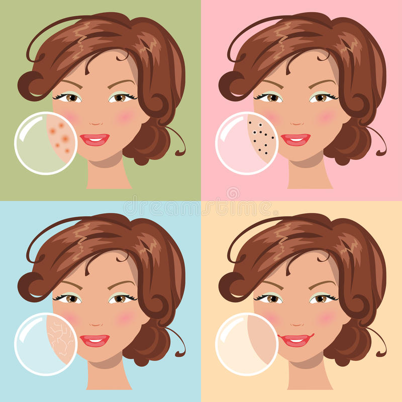 Different skin problems. Vector illustration. Girls with a problem and clean skin of the face stock illustration