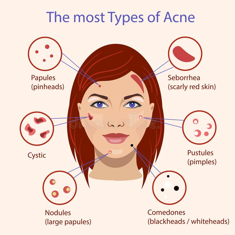 Different type of acne. Vector Illustration with skin problems. vector illustration