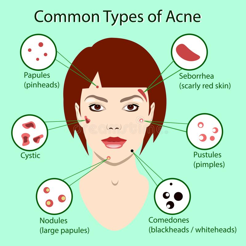 Different type of acne. Vector Illustration with skin problems. woman face isolated vector illustration