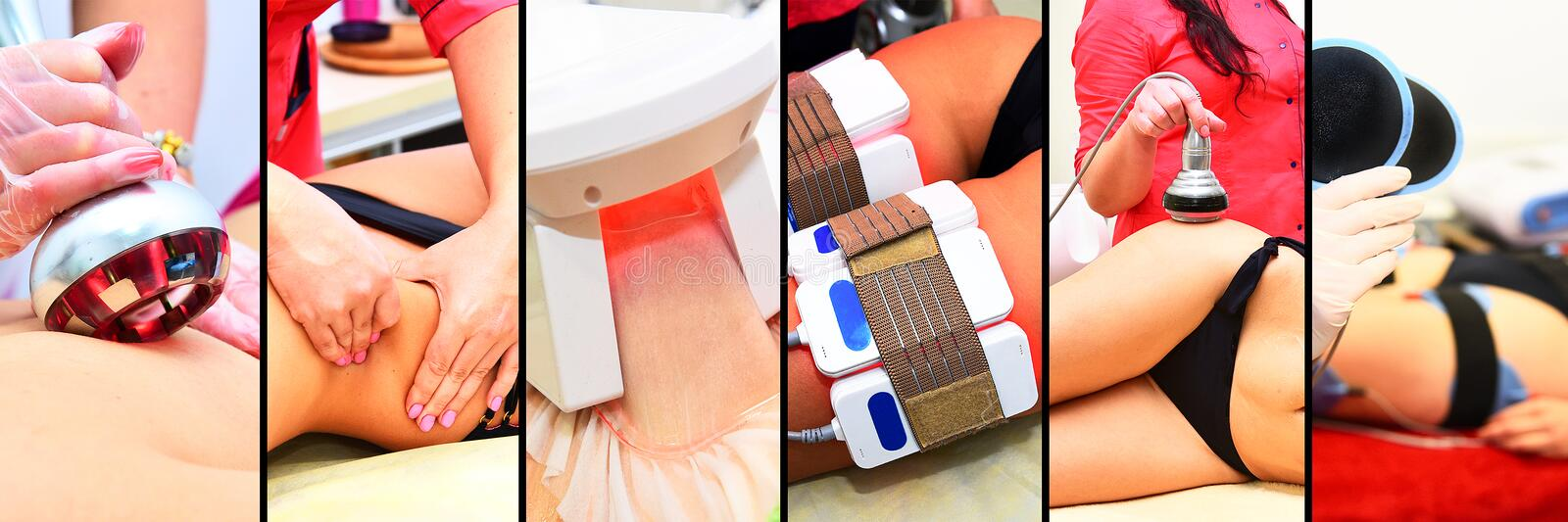 Different types of hardware spa procedures for cellulite reduction and weight loss. Myostimulation, vacuum massage, lipolaser, rad. Iofraction lifting. Collage stock images