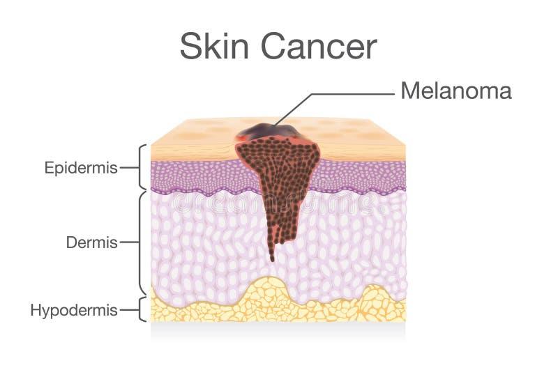 Diffusione della cellula tumorale nello strato umano della pelle illustrazione vettoriale