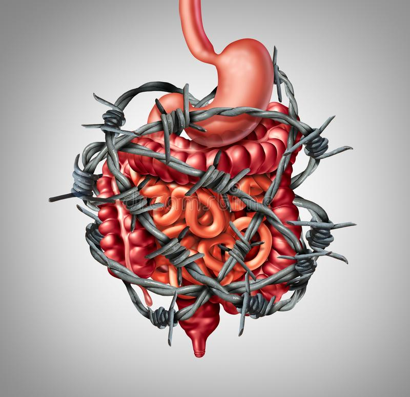 Digestion douloureuse d'intestin illustration stock
