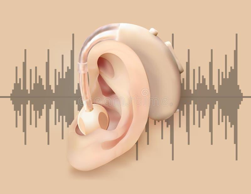 Digital hörapparat bak örat Öra och solid förstärkare på bakgrund av den solida vågen Behandling- och prostheticsnolla stock illustrationer