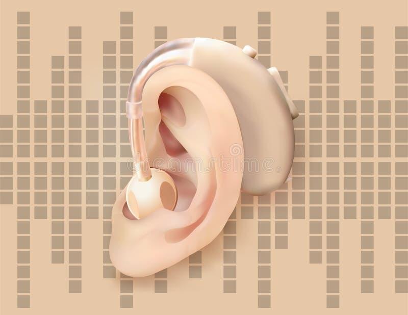 Digital hörapparat bak örat, på bakgrunden av diagrammet för solid våg Behandling och prosthetics av utfrågningförlust stock illustrationer