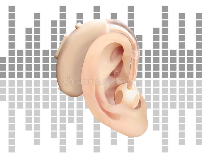 Digital hörapparat bak örat, på bakgrunden av diagrammet för solid våg Behandling och prosthetics av utfrågningförlust royaltyfri illustrationer