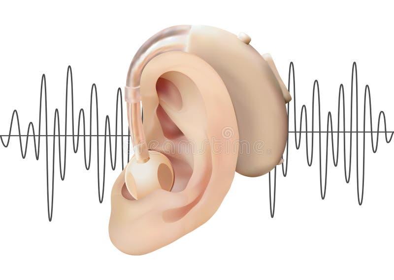 Digital hörapparat bak örat, på bakgrunden av diagrammet för solid våg Behandling och prosthetics av utfrågningförlust vektor illustrationer
