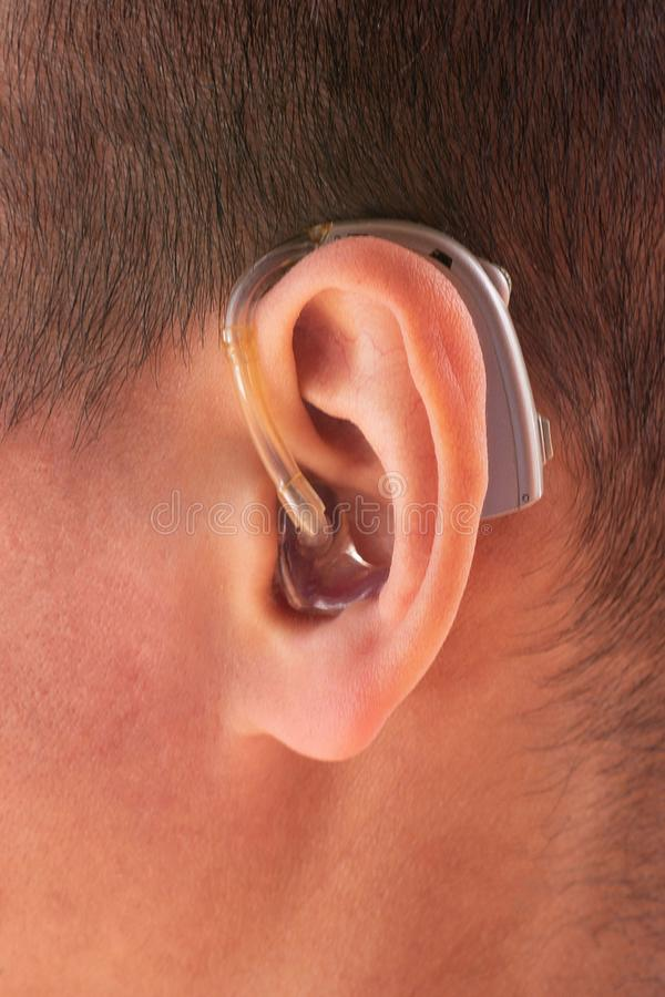 Closeup photo of ear with hearing aid stock photo