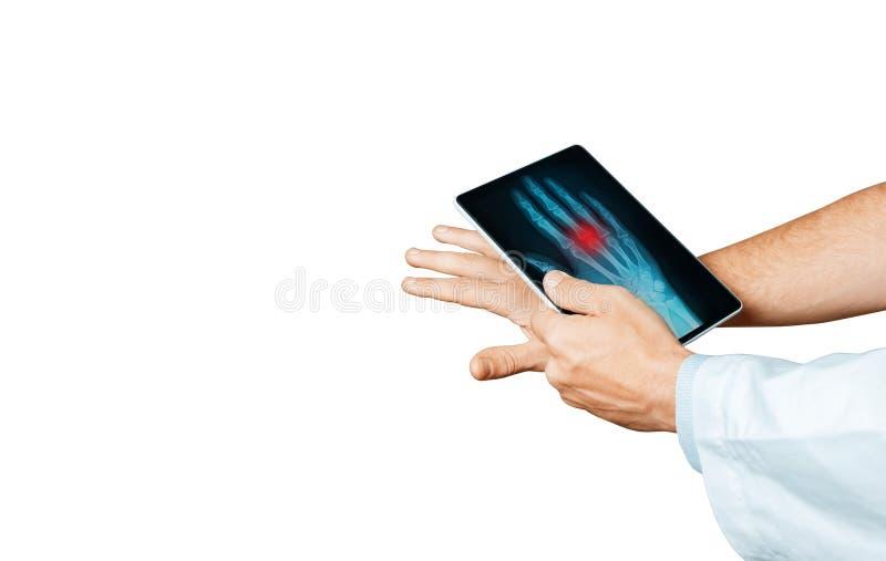 With Digital Tablet Scans医生耐心胳膊、现代X-射线工艺师医学的和医疗保健概念 库存照片