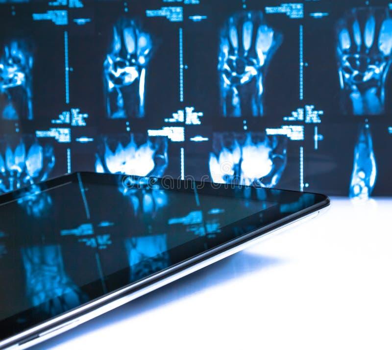 Digital-Tabletten-PC im Labor auf Röntgenstrahlbildern lizenzfreie stockfotografie