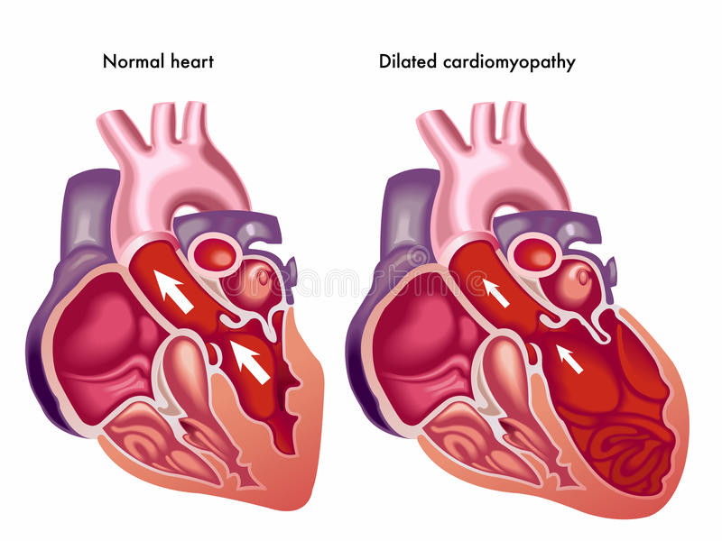 Dilated cardiomyopathy stock illustration