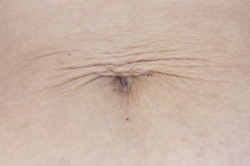 Dilated navel after losing weight and pregnancy. hanging skin close-up. stock photo