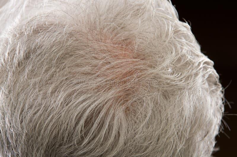 Diluição do cabelo imagem de stock royalty free