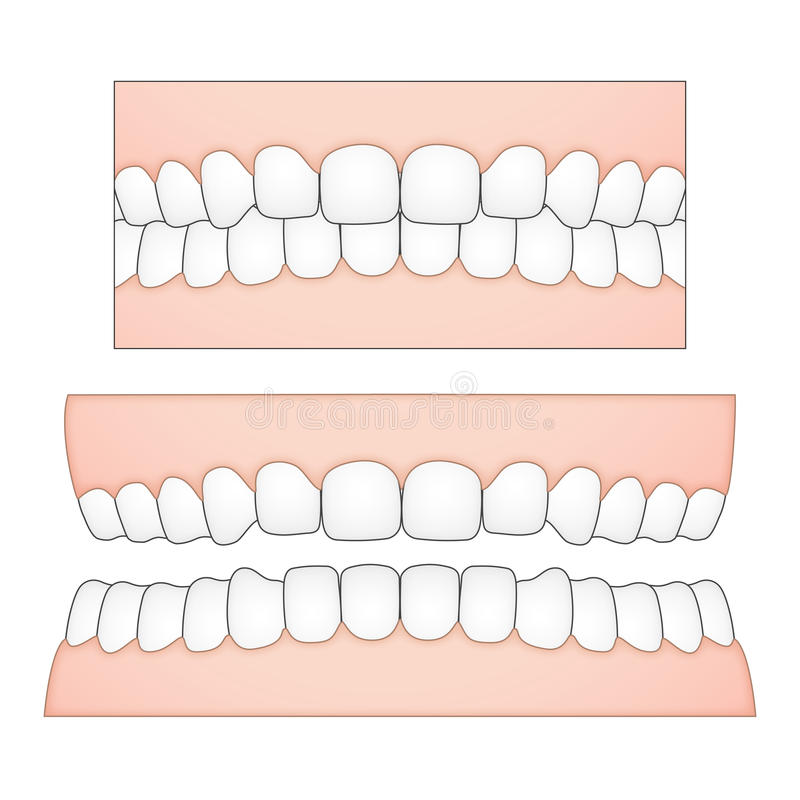 Dirigez l'illustration des dents et des gommes blanches d'une perspective frontale des descriptions médicales et dentaires illustration libre de droits