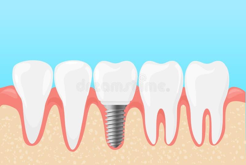 Dirigez l'illustration des dents humaines et de l'implant dentaire Le concept de dentistes de médecine des dents s'inquiètent dan illustration de vecteur