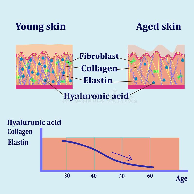 Dirigez le diagramme avec des plans de deux types de peau, pour les illustrations cosmetological illustration de vecteur