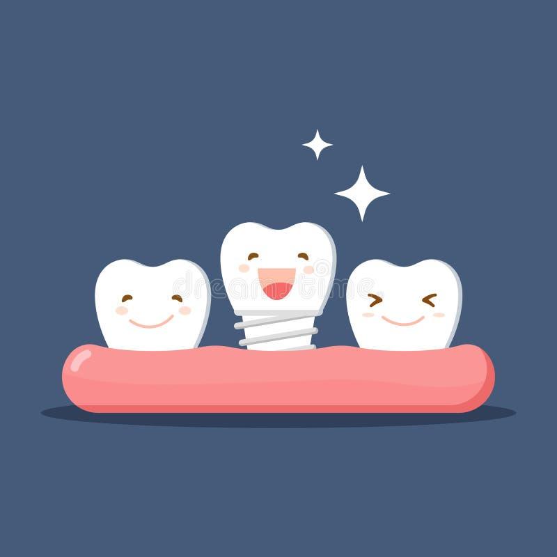 Dirigez les dents blanches de bande dessinée heureuses avec le dentier ou l'implant dentaire Restauration dans la cavité buccale  illustration stock