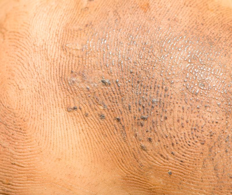 Dirty background of human skin stock image