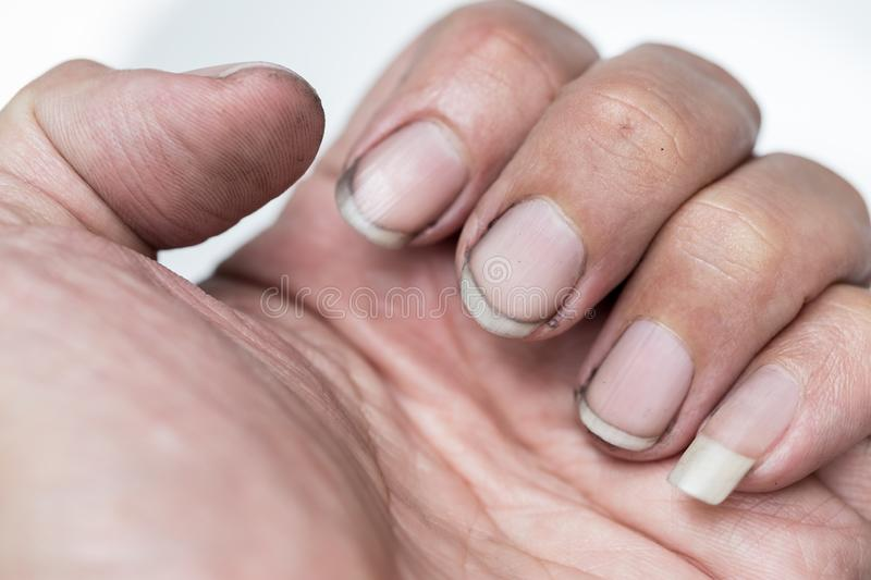 Dirty finger nails unhealthy pile up germ and bacteria unclean. Worker hand royalty free stock photo