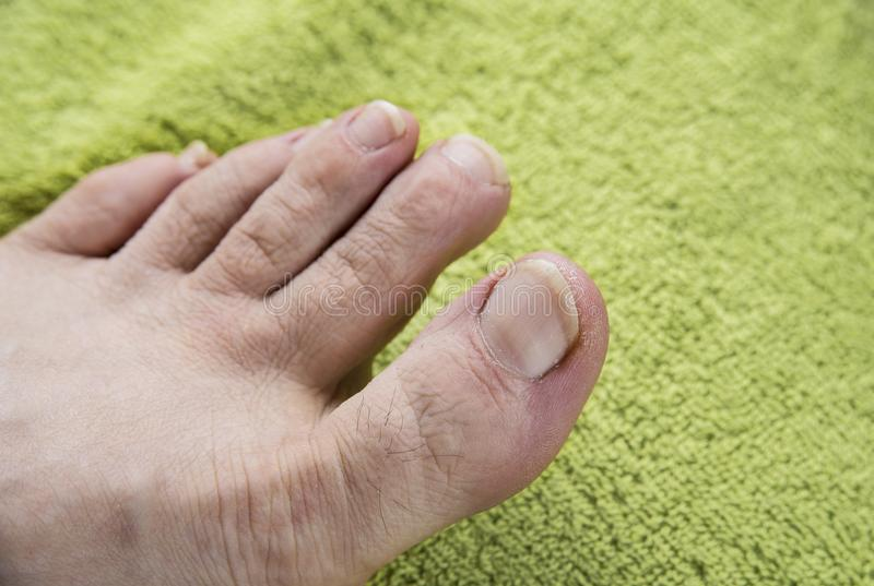 Dirty nails on man feet on green towel. stock image