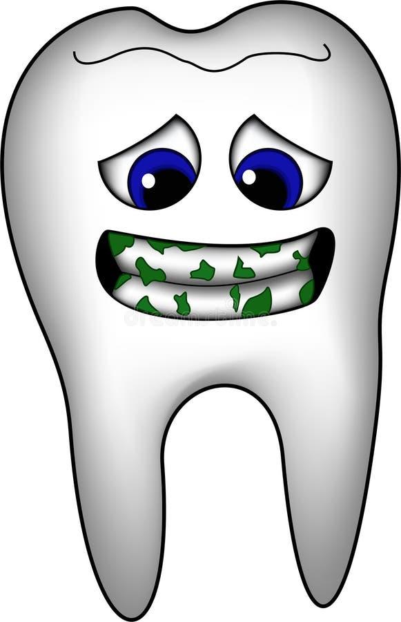 Dirty Teeth Royalty Free Stock Photo
