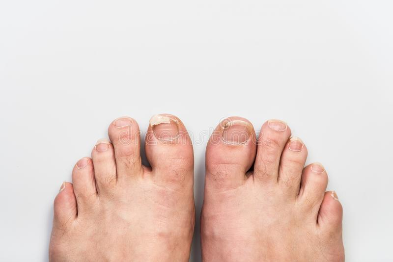 Dirty, uncut and broken toe nails, top view, gray background, health and care. Abandoned fingers on the legs, dirty, uncut and broken nails, gray background, top royalty free stock photo