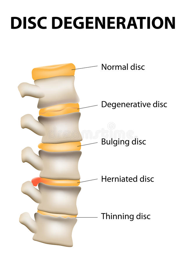 Disc degeneration. Its the normal wear and tear process of aging spine. intervertebral discs lose their flexibility, elasticity, and shock-absorbing vector illustration