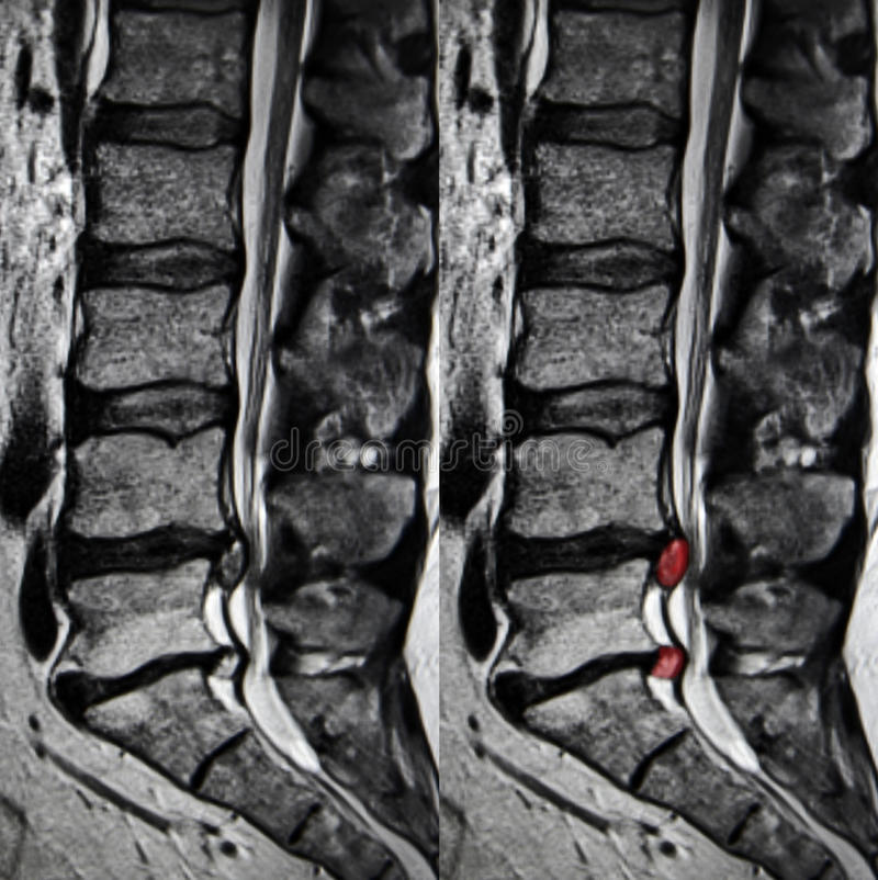 Disc Herniation, Lumbar Spine MRI Stock Image - Image of fracture ...