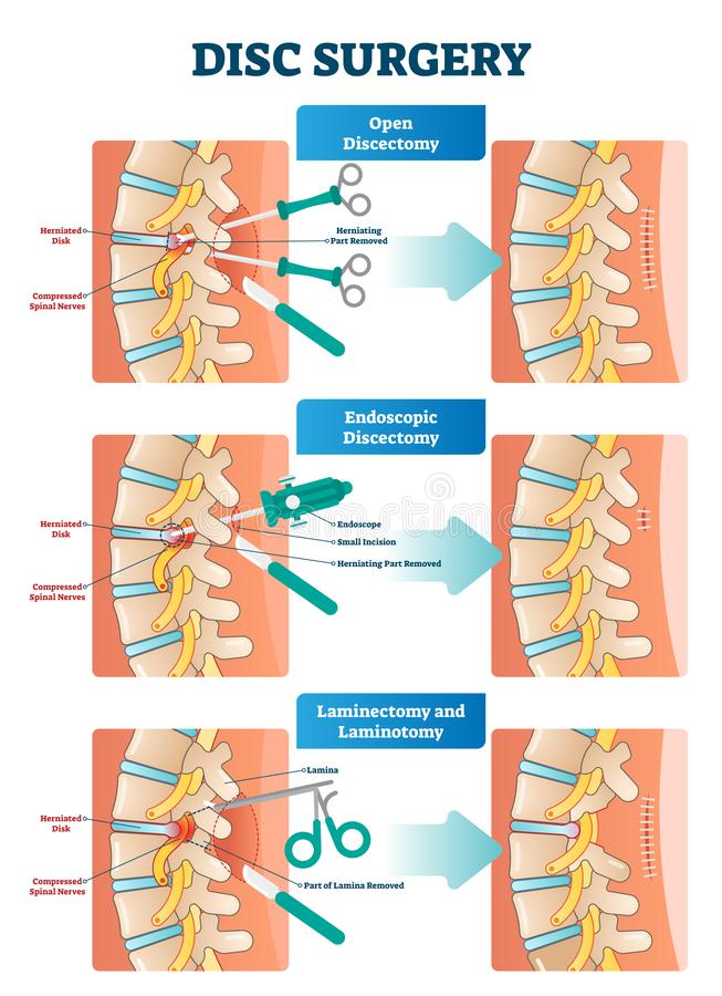 Disc surgery vector illustration. Diagram with back nerves and bones pain. vector illustration