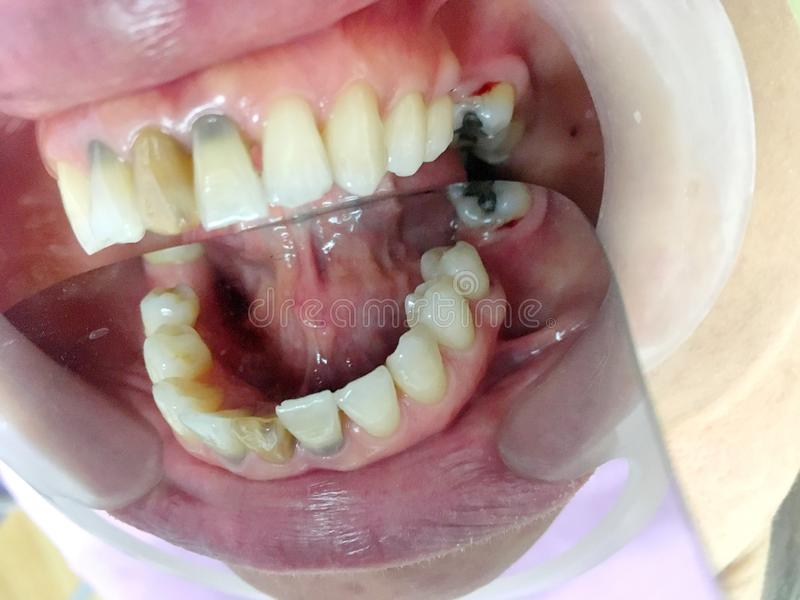 Discoloration teeth on patient`s mouth with mouth gag and cracked teeth and pulp necrosis. Photo of Discoloration teeth on patient`s mouth with mouth gag and royalty free stock photo