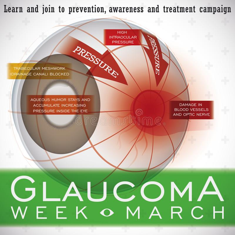 Diseño con una descripción de esta enfermedad ocular, ejemplo de la semana del glaucoma del vector stock de ilustración