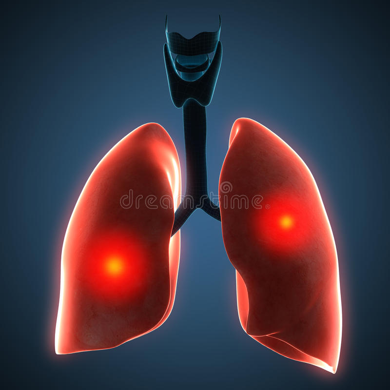 Disease illustration of human lungs. royalty free illustration