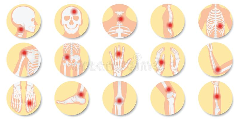 Disease of the joints and bones icon set on white background. Bone x-ray image of human joints, anatomy skeleton flat design vector illustration vector illustration