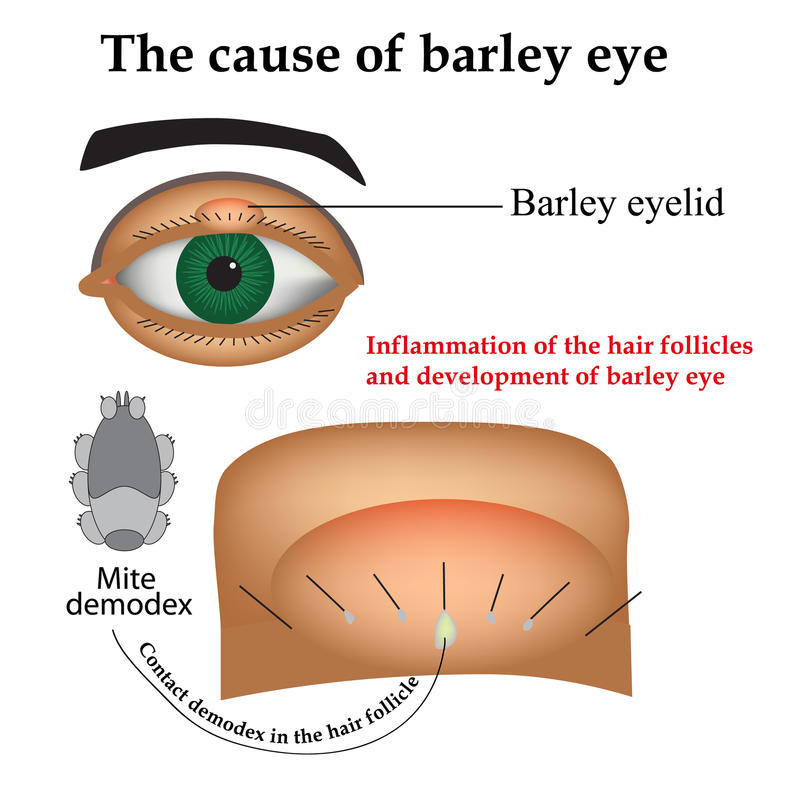 Diseases of the eye barley. Causes of barley. Demodex mite infestations. Inflammation volosyannoy bulbs stock illustration