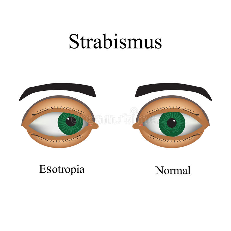 Free Diseases Of The Eye - Strabismus. A Variation Of Royalty Free Stock Images - 54578209