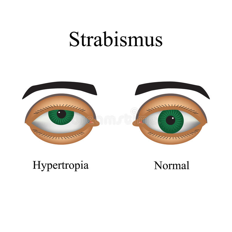 Free Diseases Of The Eye - Strabismus. A Variation Of Stock Image - 54578431