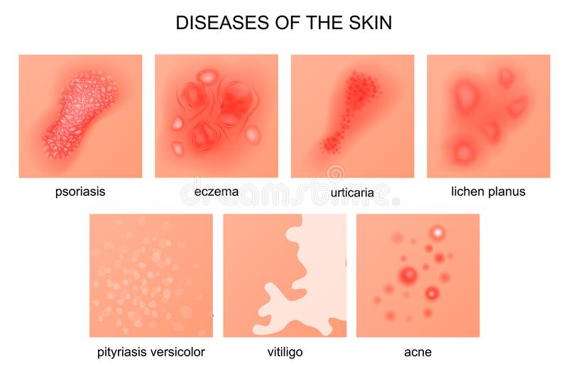 Diseases of the skin. Vector illustration of diseases of the skin stock illustration