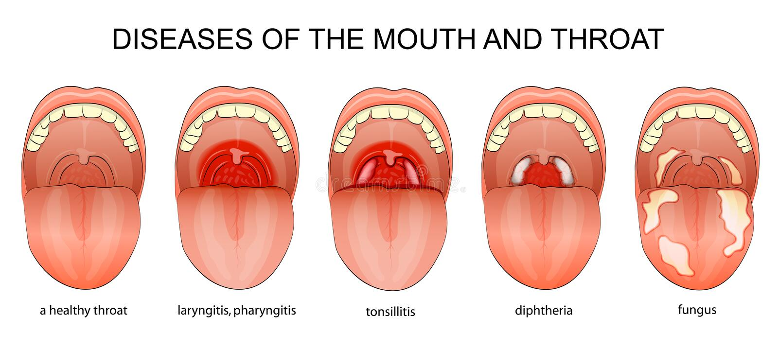 DISEASES OF THE THROAT. Illustration of the inflammatory diseases of the throat stock illustration