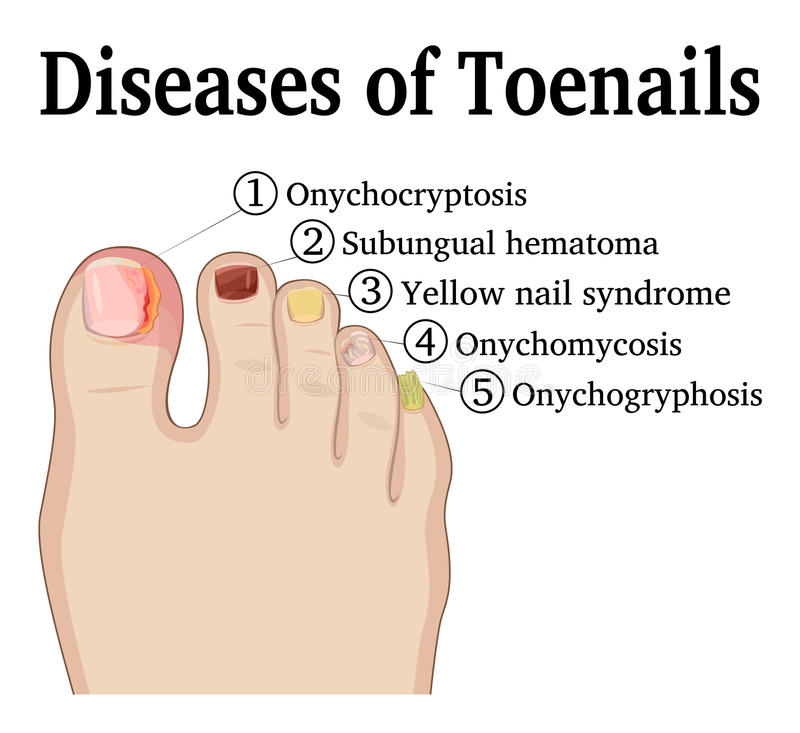Diseases of Toenails vector illustration